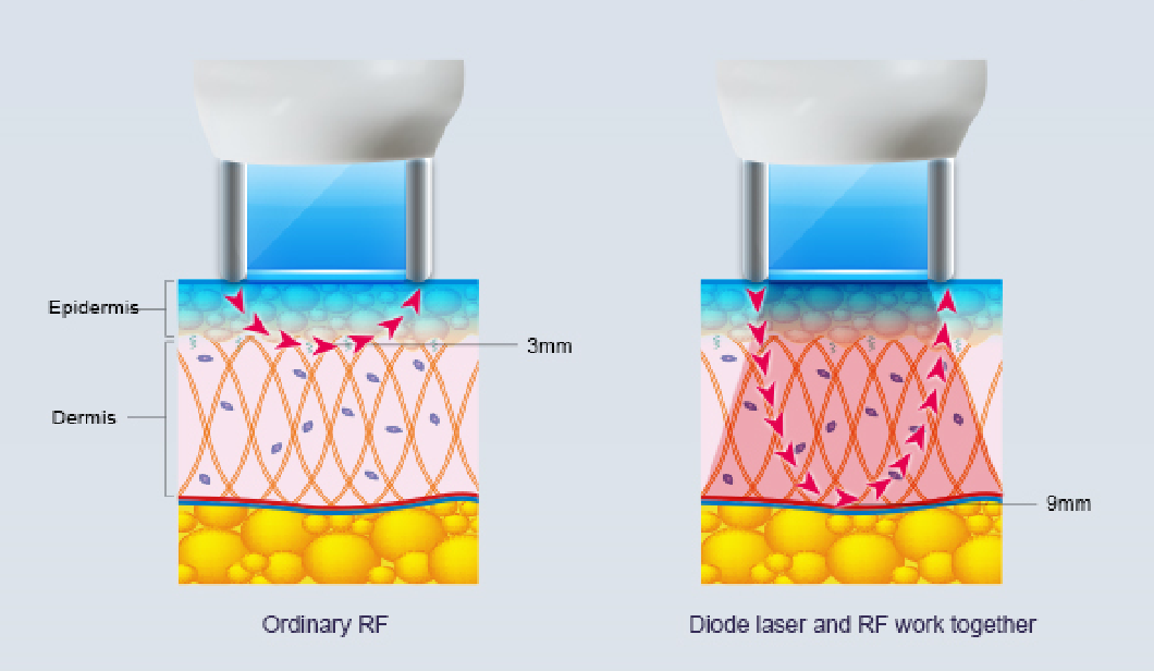 RF+ Diode Combination laser gun